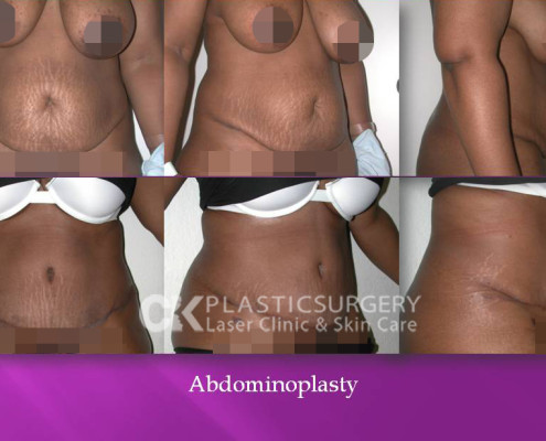 Abdominoplasty In California
