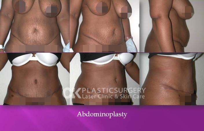 Abdominoplasty In California
