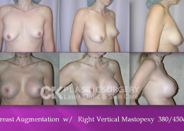 Mastopexy In Los Angeles