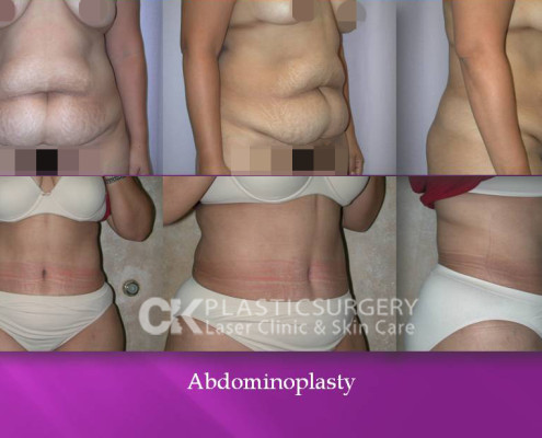 Abdominoplasty by Dr. Kim
