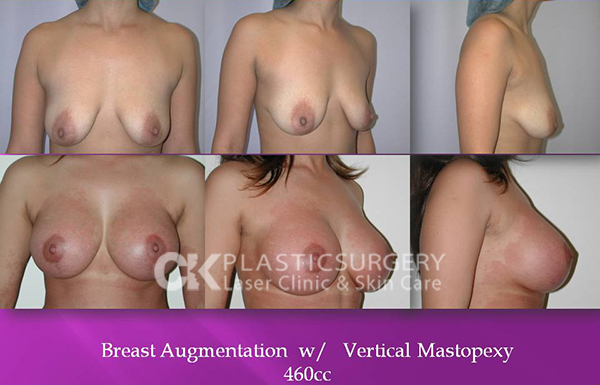 Breastlift Surgery
