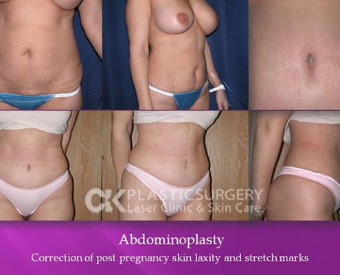 Abdominoplasty California