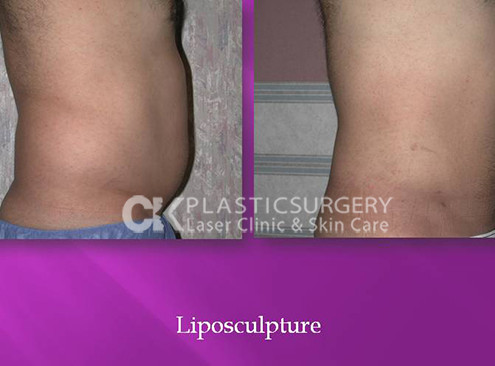 Liposuction in Costa Mesa