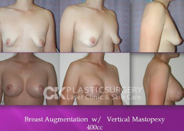 Breastlift in OC