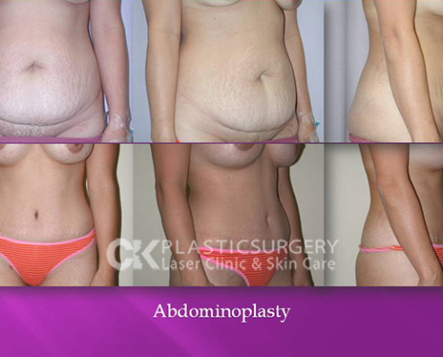 Abdominoplasty Surgery Costa Mesa