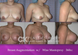 Mastopexy in OC