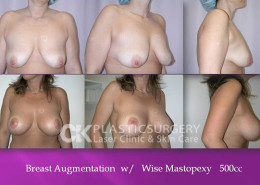 Mastopexy in Beverly Hills