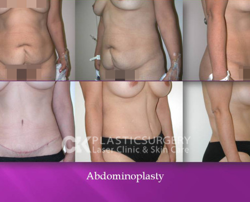 Beverly Hills Tummy Tuck Surgeon