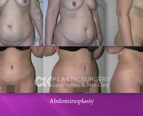 Abdominoplasty Plastic Surgery
