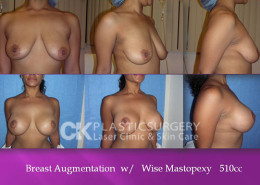 Wise Mastopexy Costa Mesa