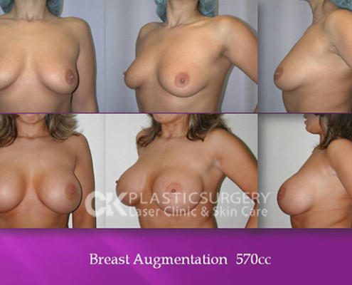 Breast Augmentation 570cc in Costa Mesa