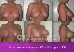 Breastlift in California