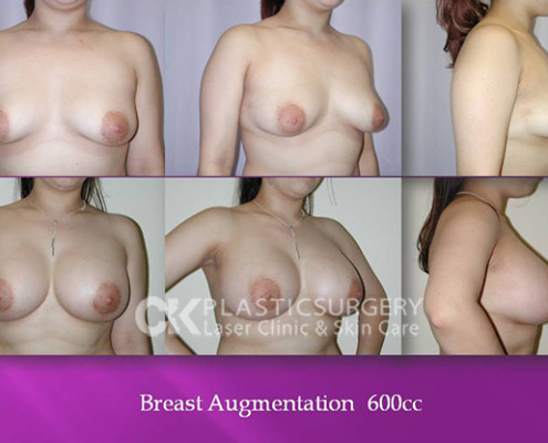 Breast Augmentation 600cc in Los Angeles