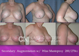 Mastopexy in California
