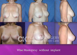 Breast Lift Costa Mesa