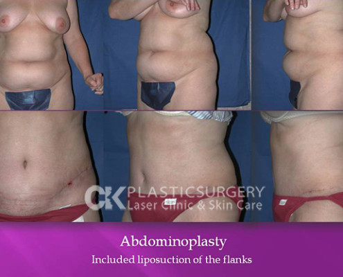 Abdominoplasty In Los Angeles