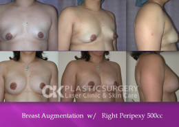 Breast Lift (Mastopexy) in Costa Mesa