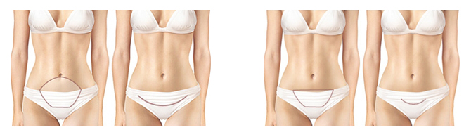 Image result for closing the incisions of tummy tuck