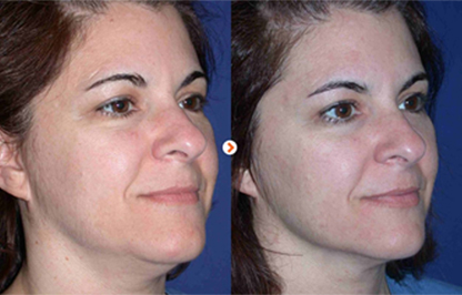 Before and After - Ultherapy