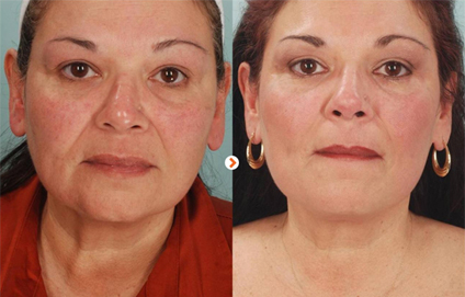 Before and After – Ultherapy Los Angeles