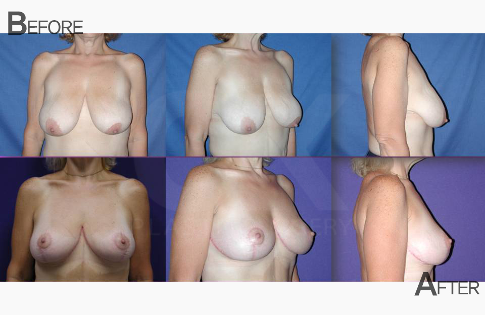 Saggy Breasts Reduction Surgery