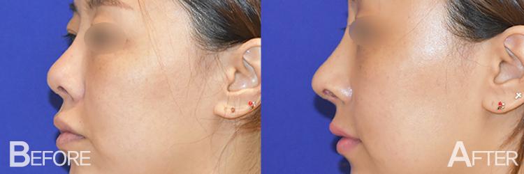 Arrow Nose Surgery