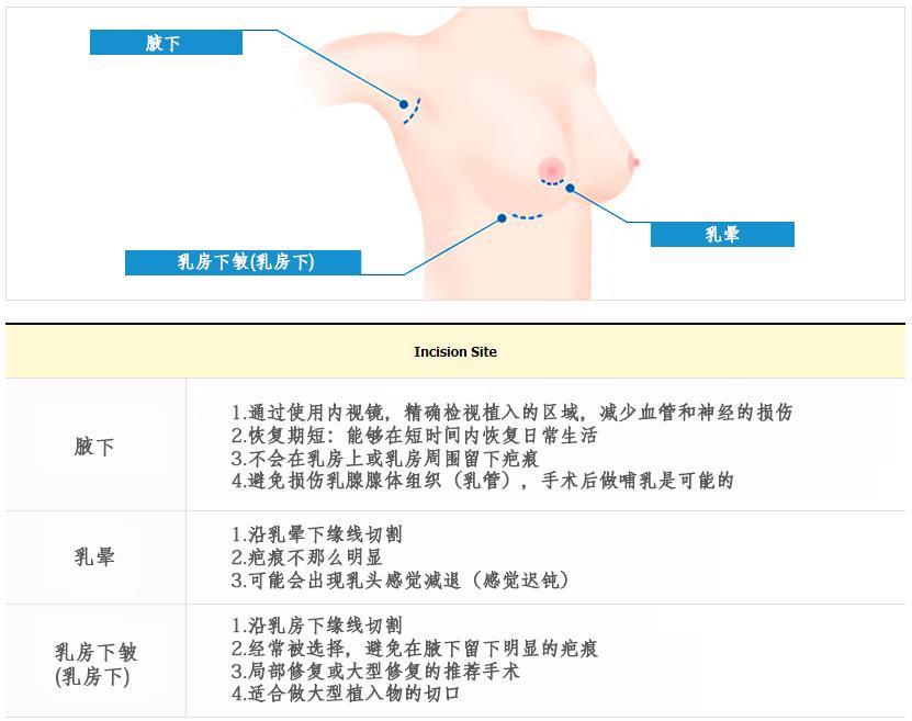 Incision site(CN)