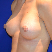 Breast Augmentation 265cc A2