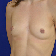 Breast Augmentation 265cc B2