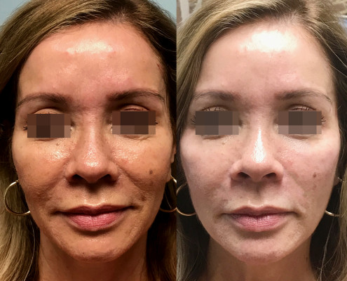 Before and After Filler Radiesse