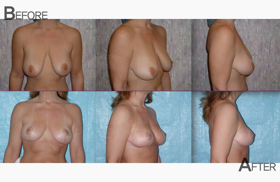 Breast Lift in Costa Mesa