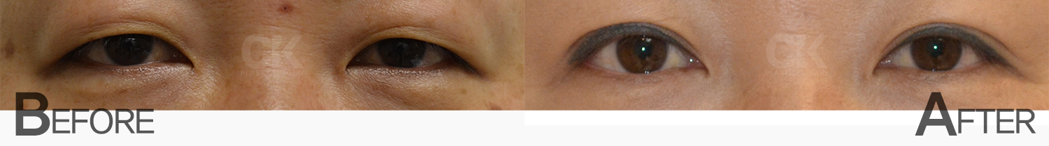 Before and After Double Eyelid Surgery