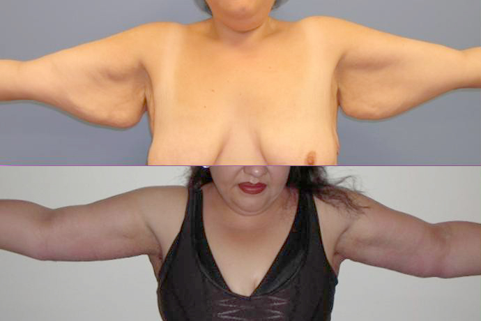 Before and After Arm Lift Surgery