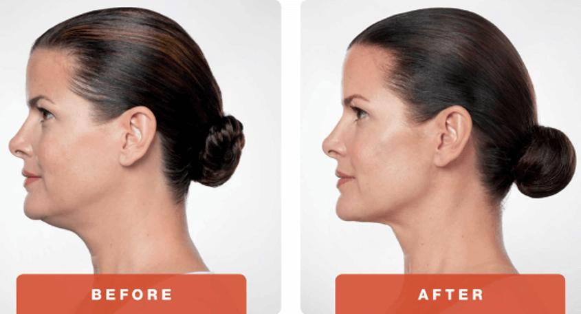 Before and After Kybella in LA