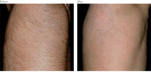 Before and After Lumenis Infinity Treatment